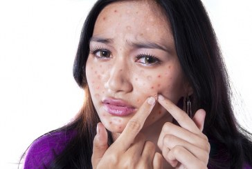 15 SIMPLE NATURAL REMEDIES TO GET RID OF PIMPLES AND ACNE SCARS