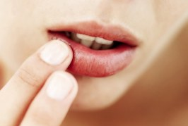 18 Most Frequently Applied at Home Cold Sores Treatments And Remedies