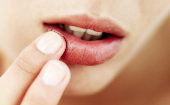 18 Most Frequently Applied Cold Sores Treatment And Remedies At Home