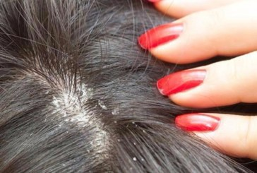 17 Natural Way You Can Remedy Dandruff At Home
