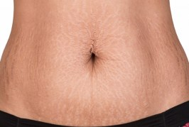 19-HOME-REMEDIES-OF-ELIMINATING-STRETCH MARKS-FAST