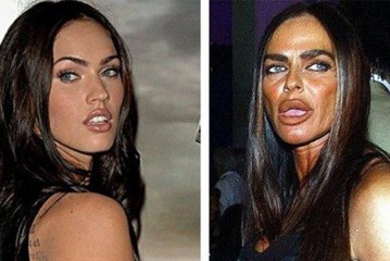 50 Most Utmost Extreme Celebrity Plastic Surgeries Went Bad Of All Time